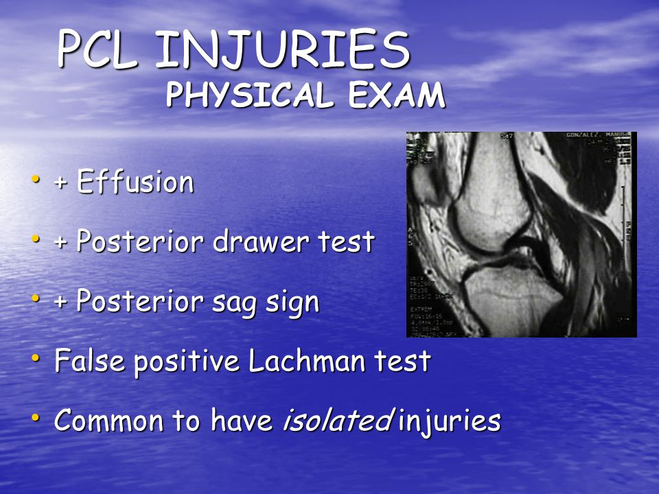 PCL INJURIES PHYSICAL EXAM + Effusion + Posterior drawer test