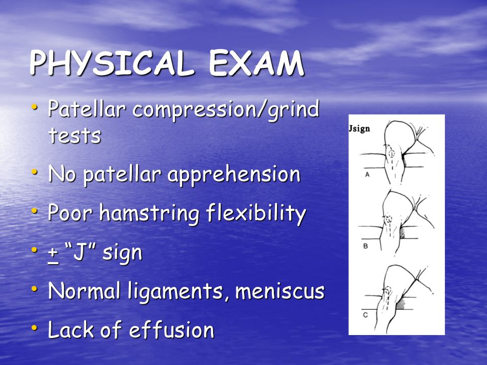 PHYSICAL EXAM Patellar compression/grind tests
