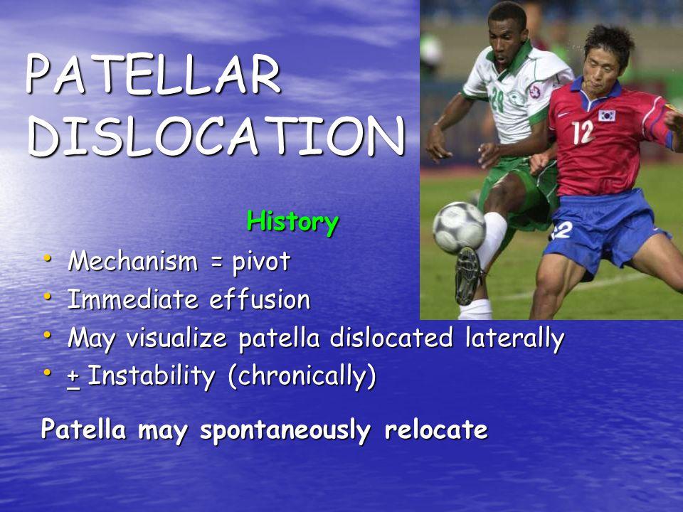 PATELLAR DISLOCATION History Mechanism = pivot Immediate effusion