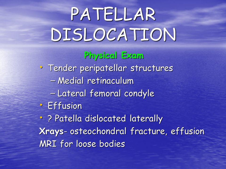 PATELLAR DISLOCATION Physical Exam Tender peripatellar structures