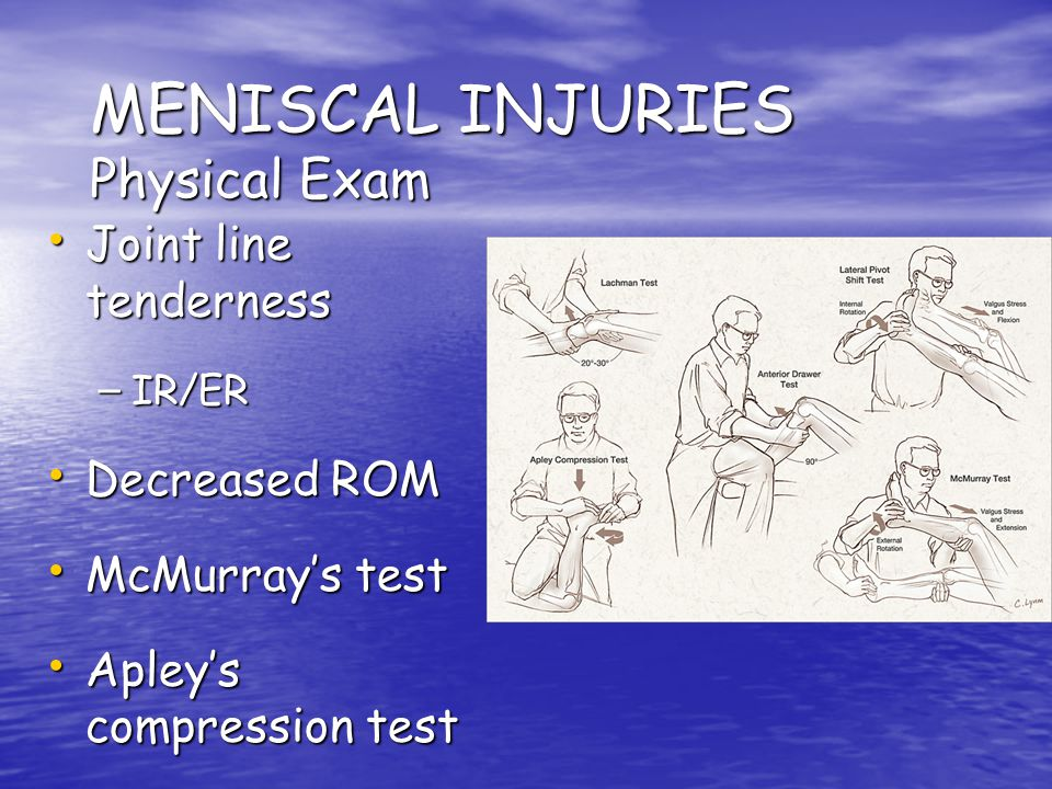 MENISCAL INJURIES Physical Exam