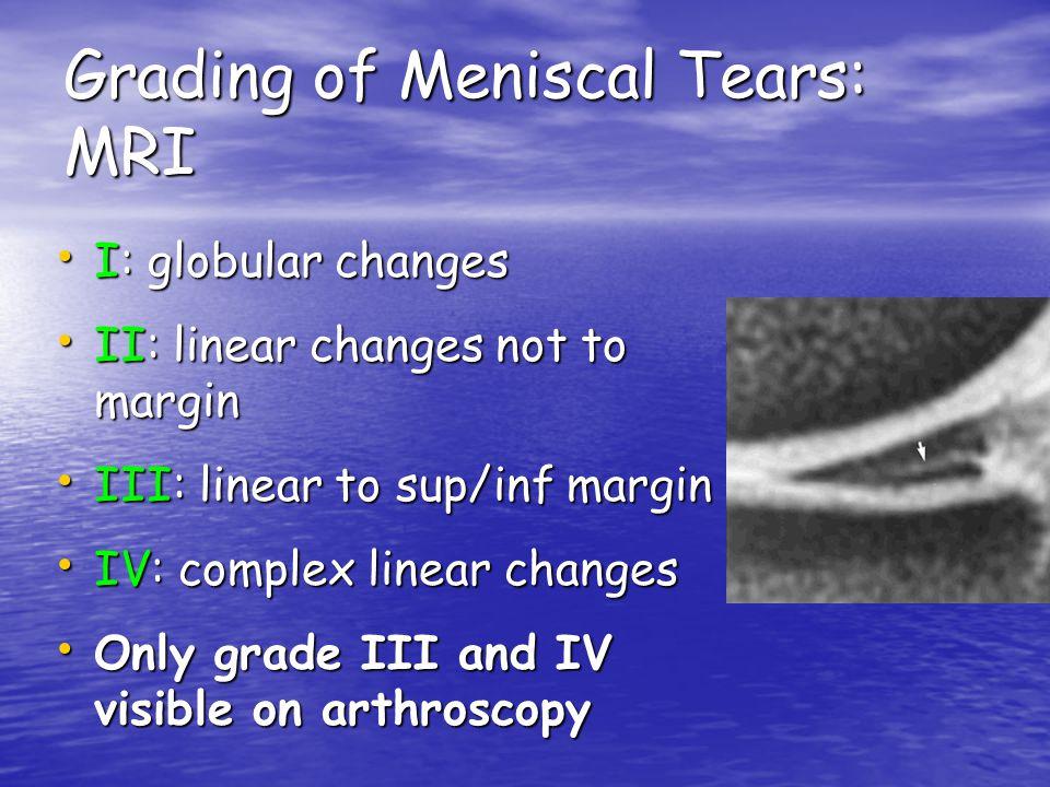 Grading of Meniscal Tears: MRI