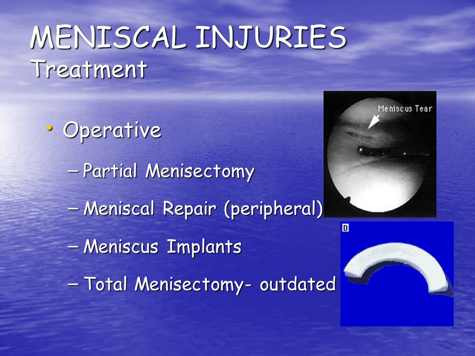 MENISCAL INJURIES Treatment