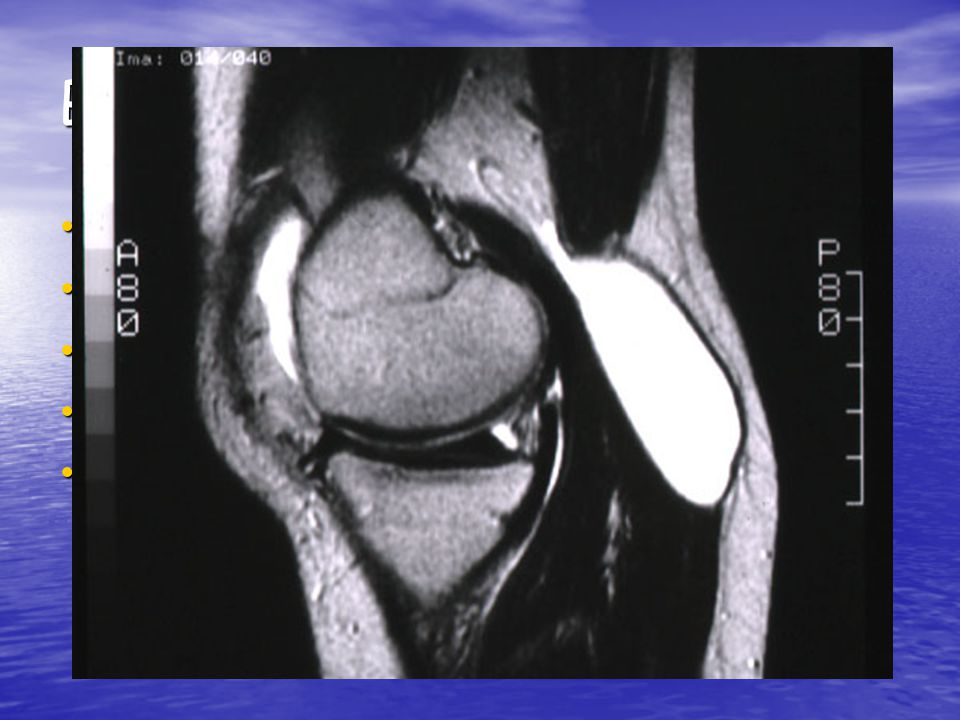 Baker's Cyst and the Meniscus