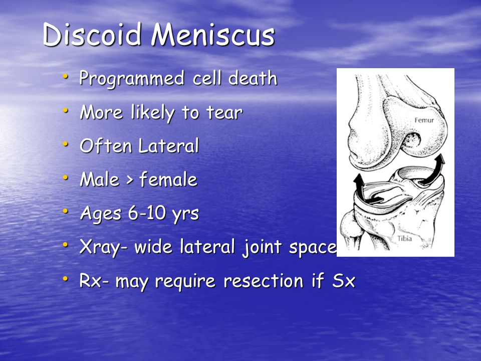 Discoid Meniscus Programmed cell death More likely to tear