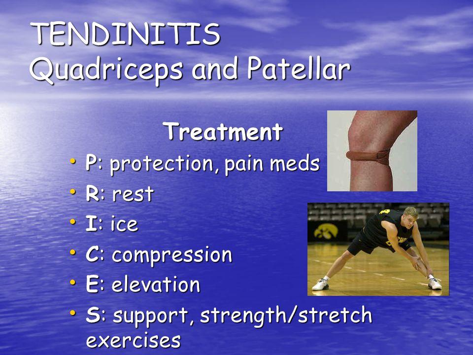 TENDINITIS Quadriceps and Patellar