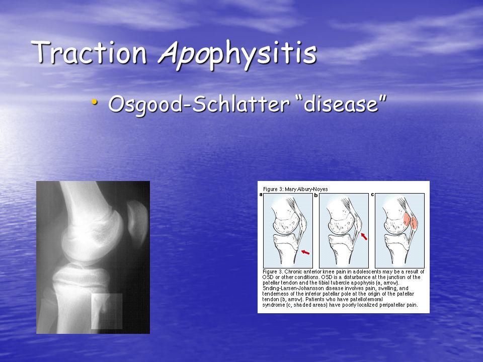 Traction Apophysitis Osgood-Schlatter disease
