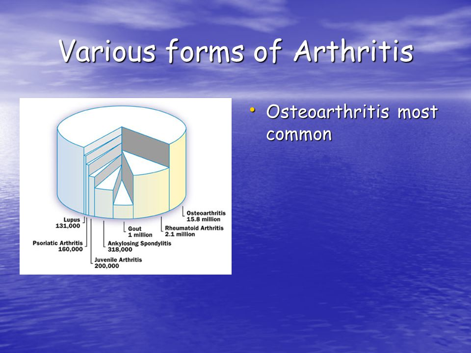Various forms of Arthritis