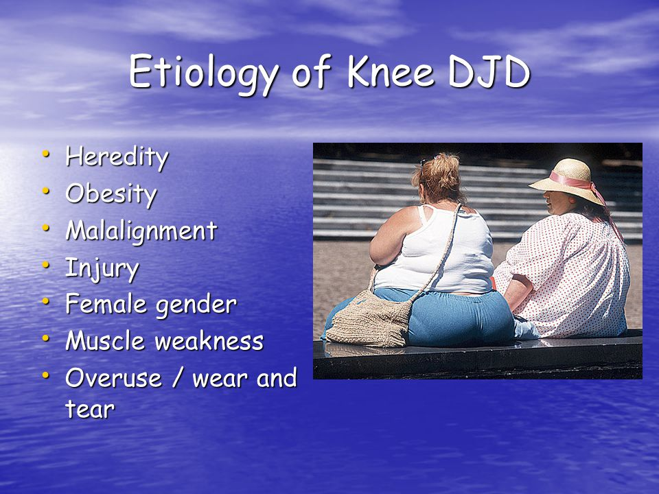 Etiology of Knee DJD Heredity Obesity Malalignment Injury