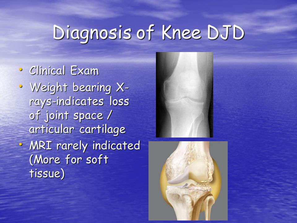 Diagnosis of Knee DJD Clinical Exam