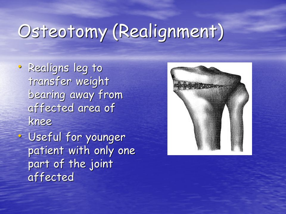 Osteotomy (Realignment)