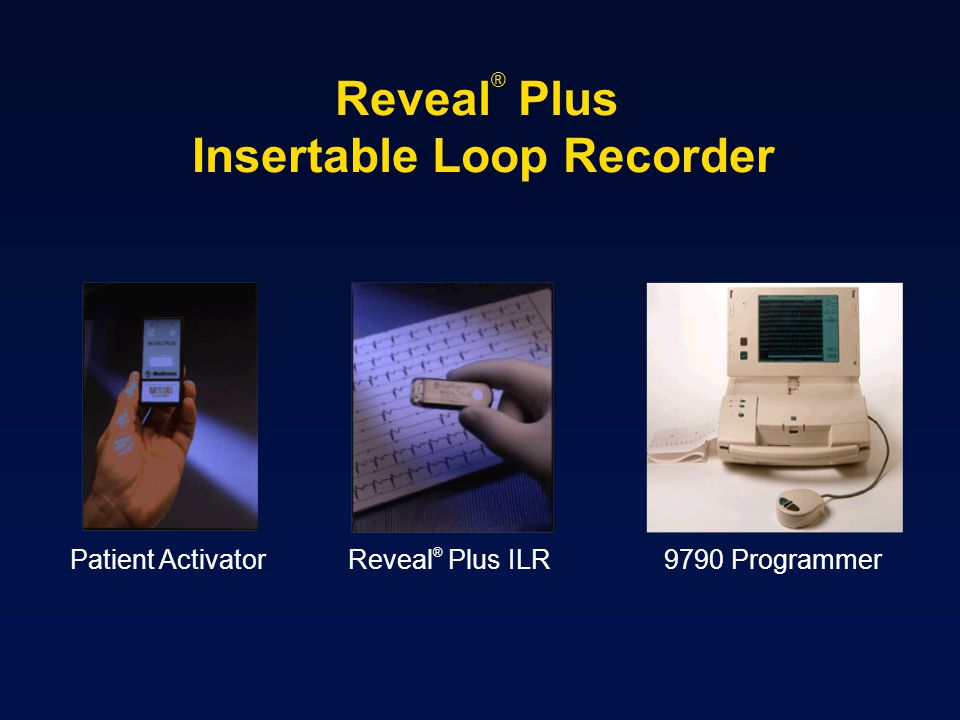 Reveal® Plus Insertable Loop Recorder