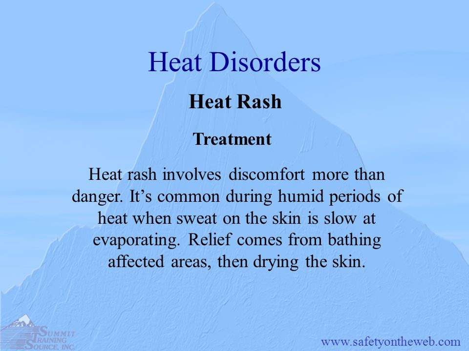Heat Disorders Heat Rash Treatment