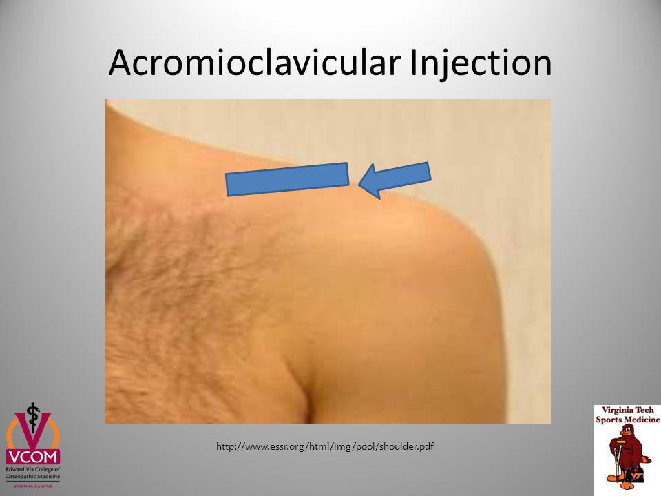 Acromioclavicular Injection