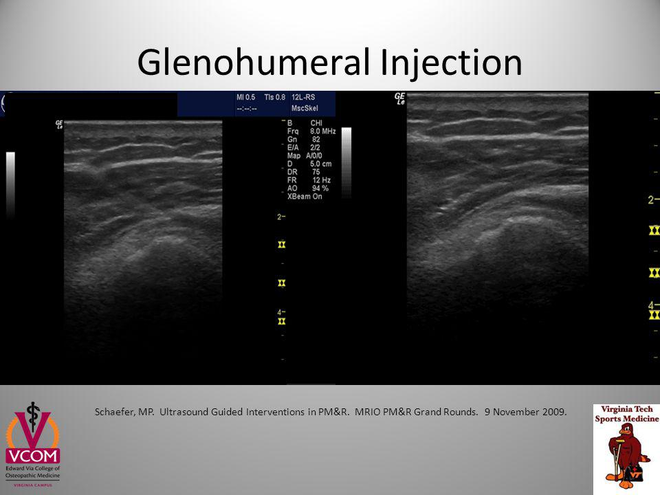 Glenohumeral Injection