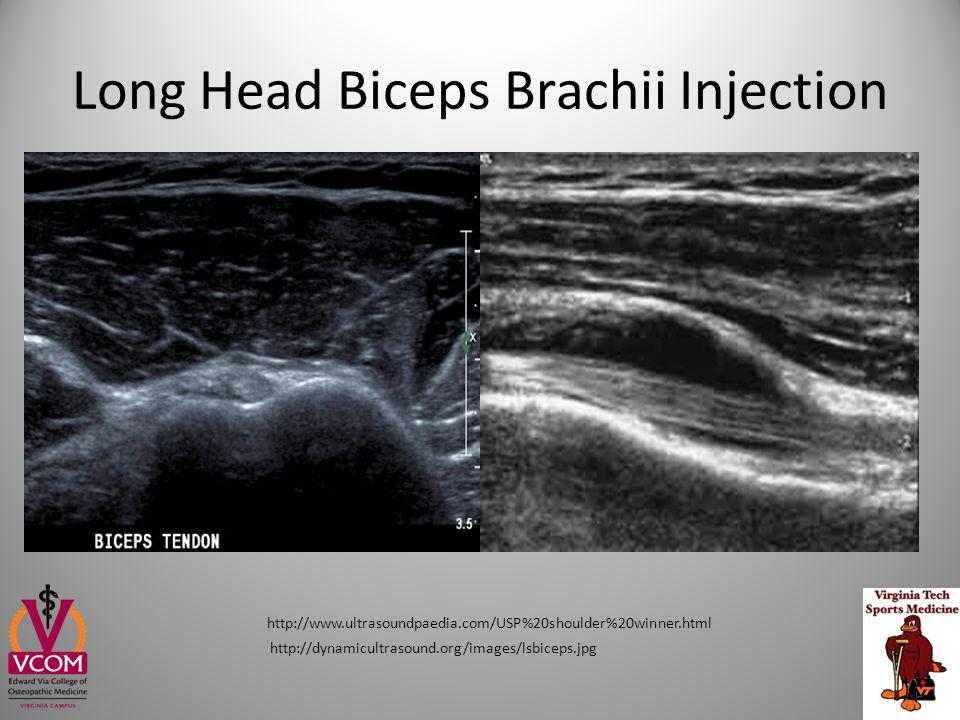 Long Head Biceps Brachii Injection