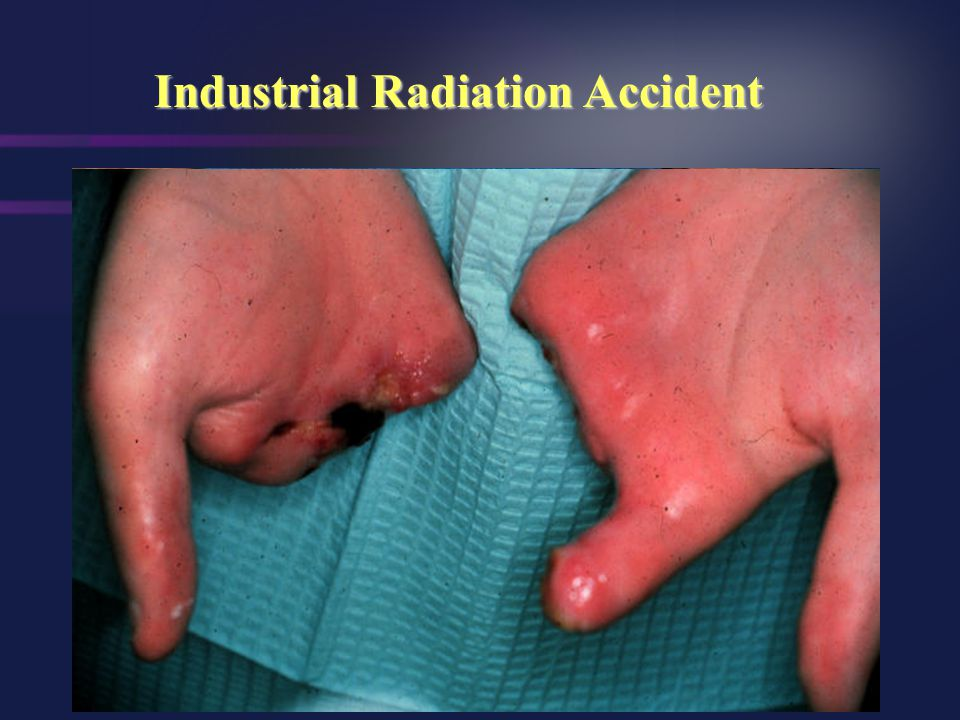 Industrial Radiation Accident