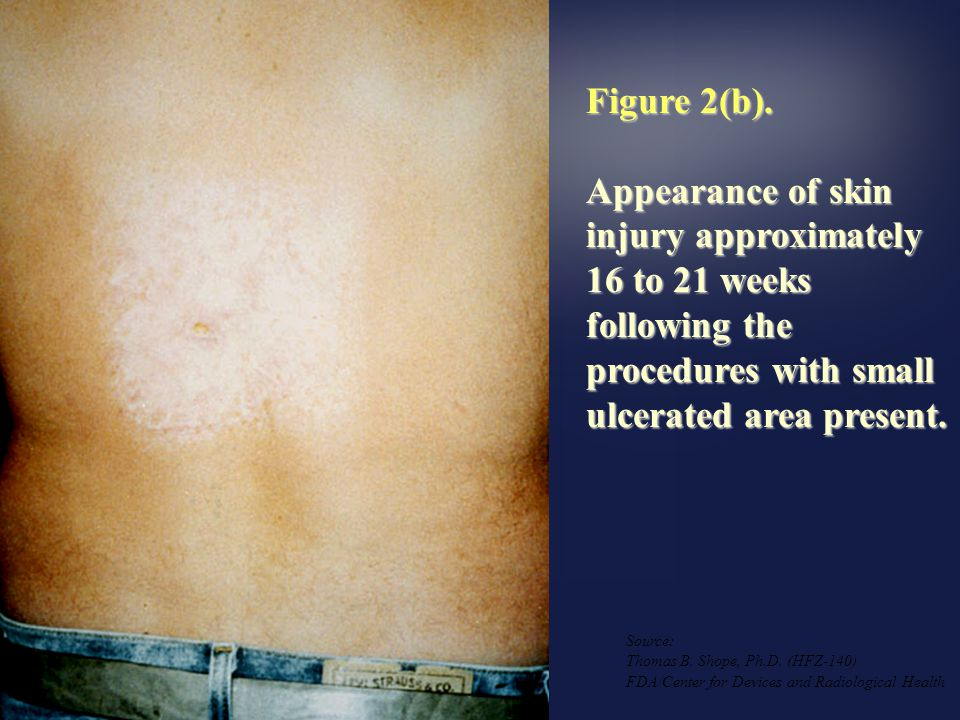 Figure 2(b). Appearance of skin injury approximately 16 to 21 weeks following the procedures with small ulcerated area present.