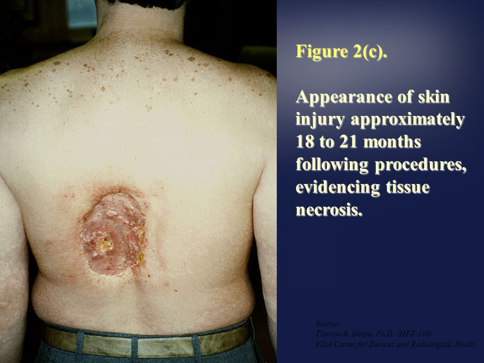 Figure 2(c). Appearance of skin injury approximately 18 to 21 months following procedures, evidencing tissue necrosis.