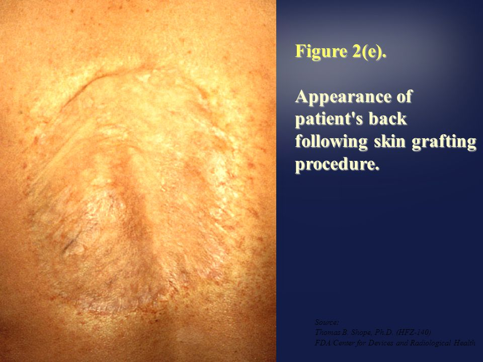Appearance of patient s back following skin grafting procedure.