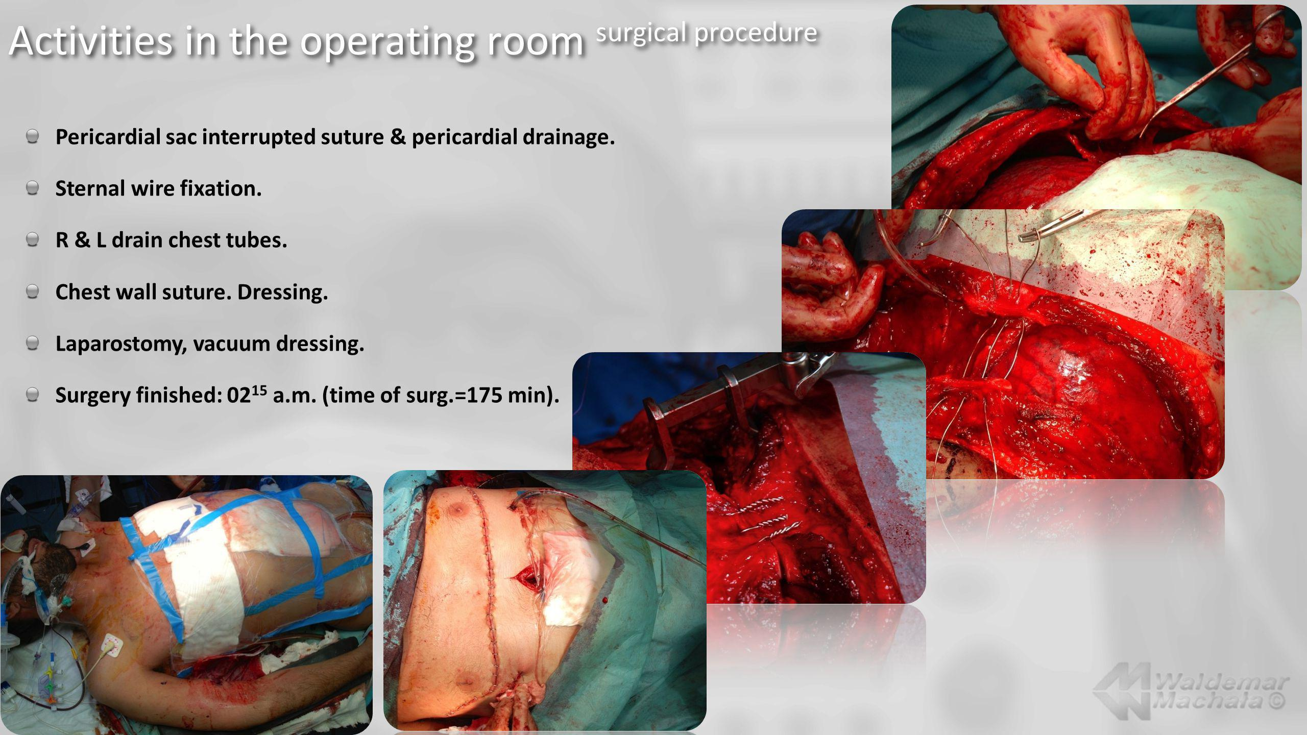 Activities in the operating room surgical procedure