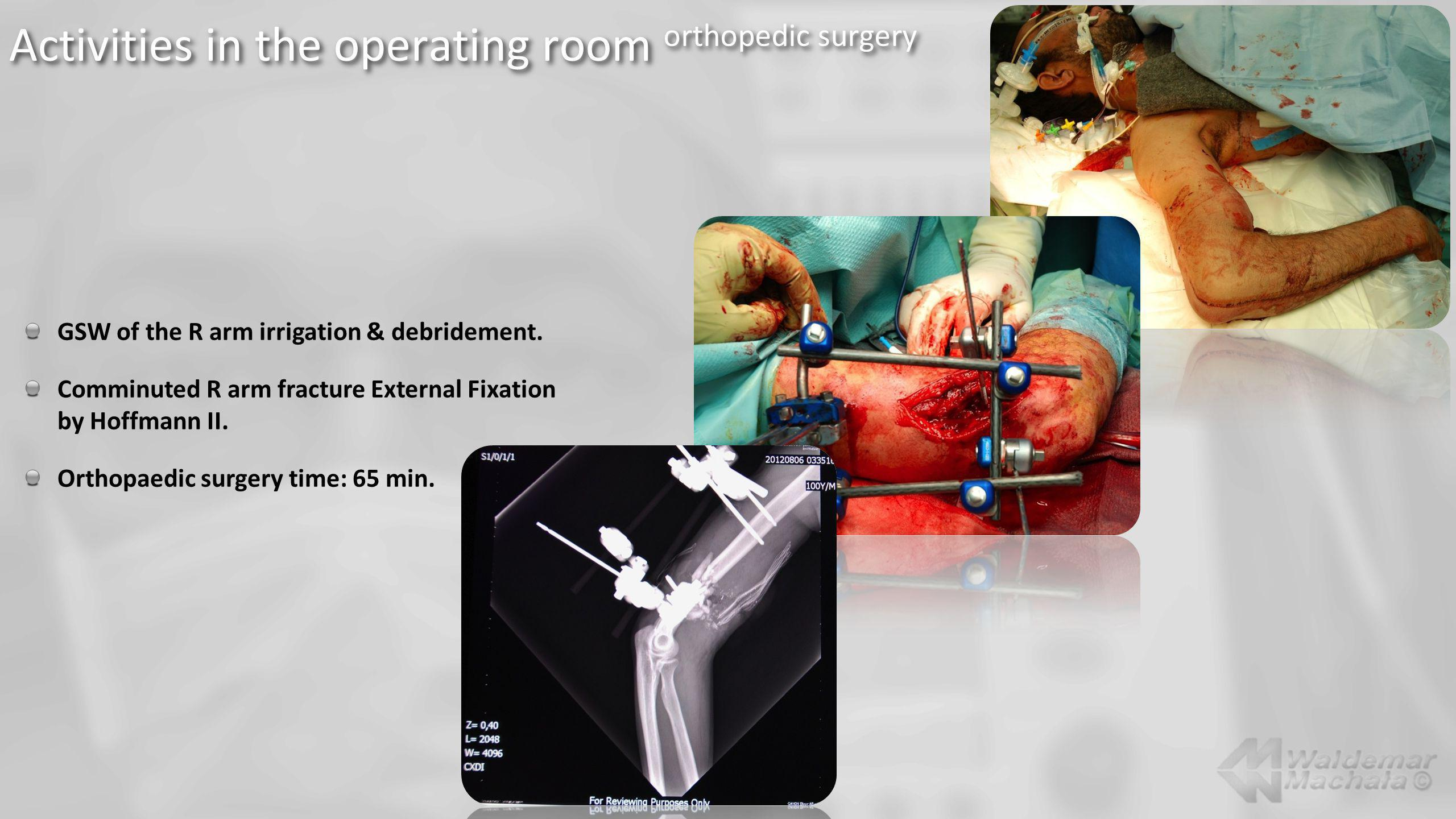Activities in the operating room orthopedic surgery