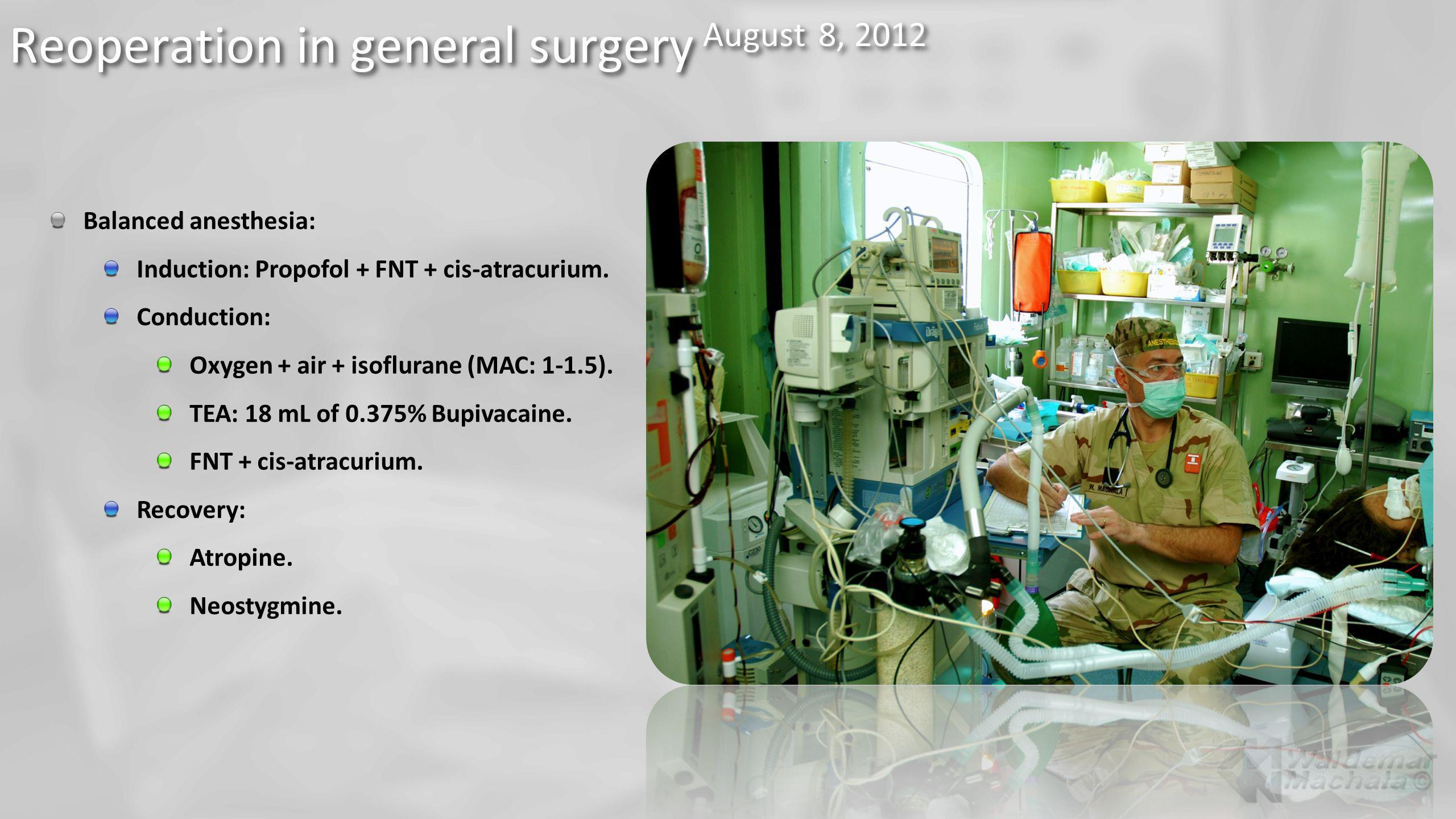 Reoperation in general surgery August 8, 2012