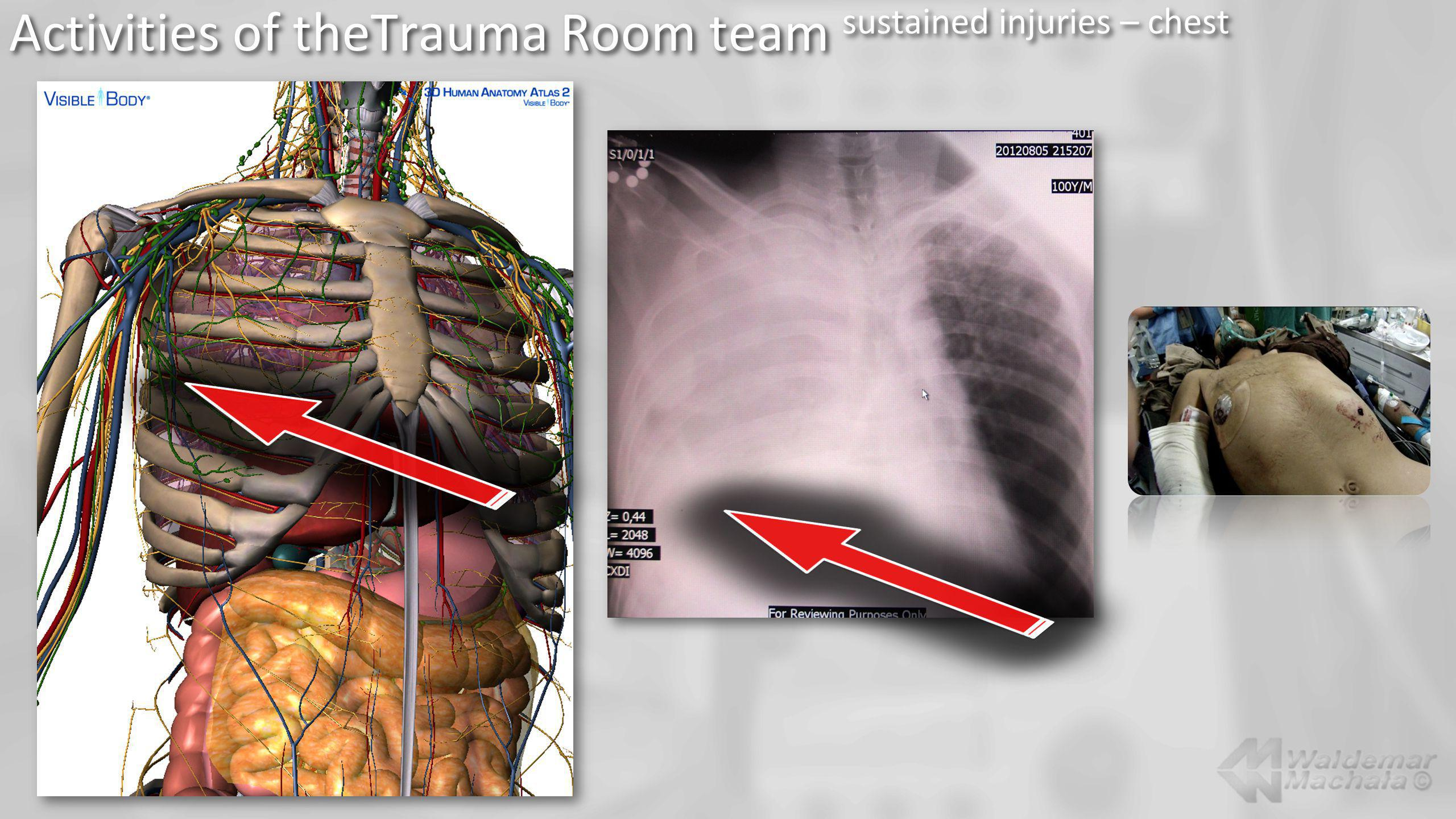 Activities of theTrauma Room team sustained injuries – chest