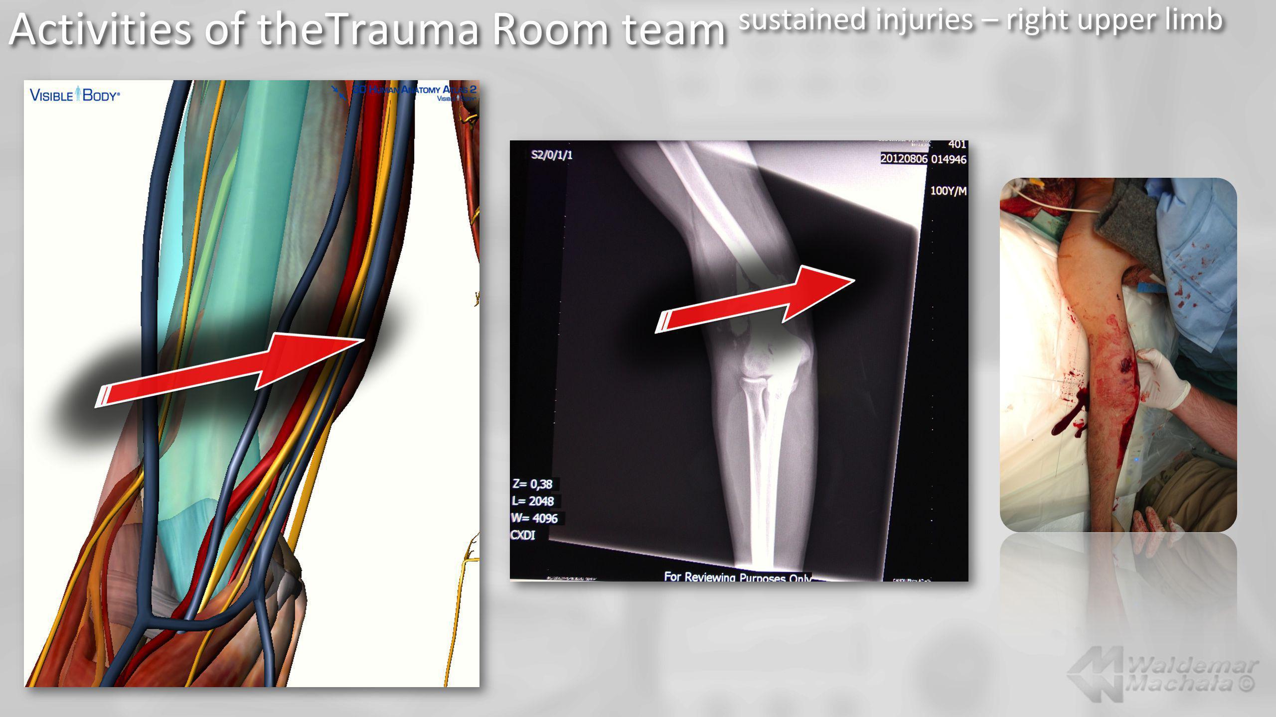 Activities of theTrauma Room team sustained injuries – right upper limb