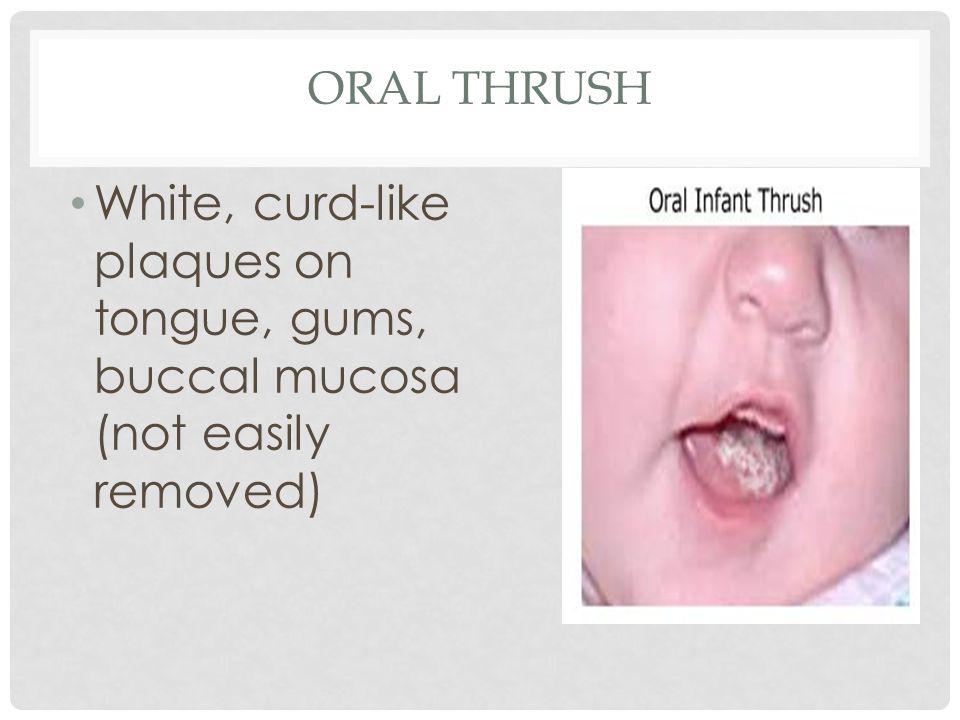Oral Thrush White, curd-like plaques on tongue, gums, buccal mucosa (not easily removed)