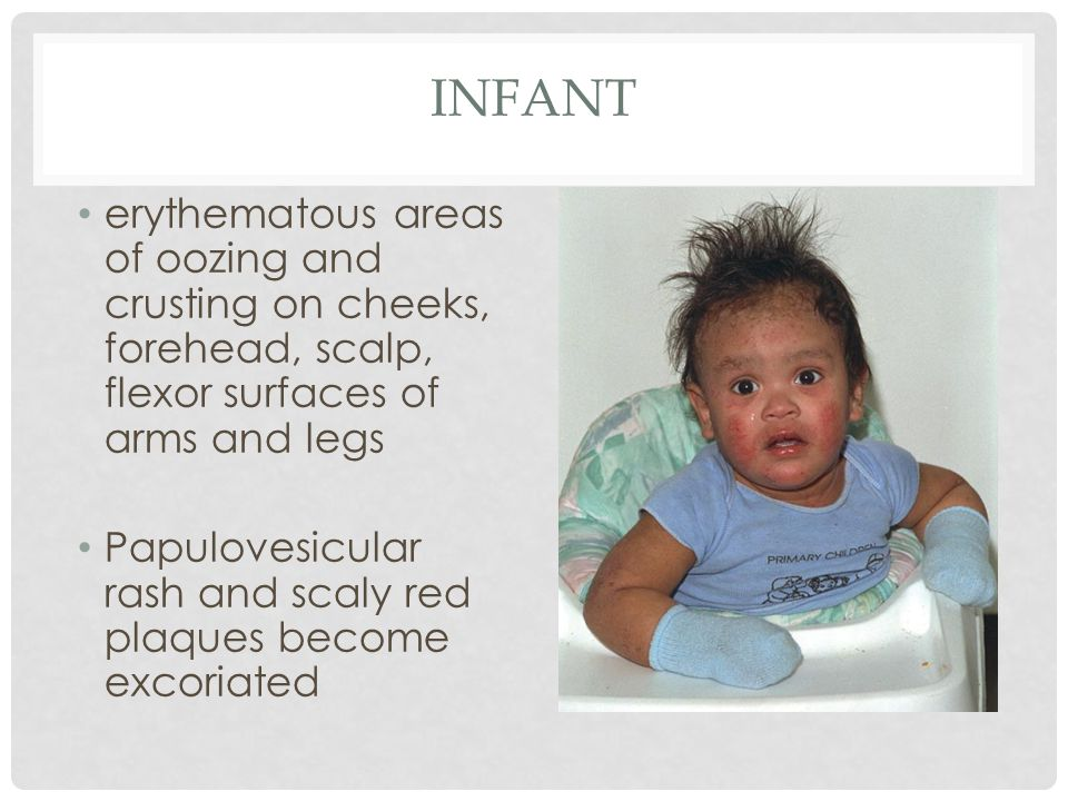 Infant erythematous areas of oozing and crusting on cheeks, forehead, scalp, flexor surfaces of arms and legs.