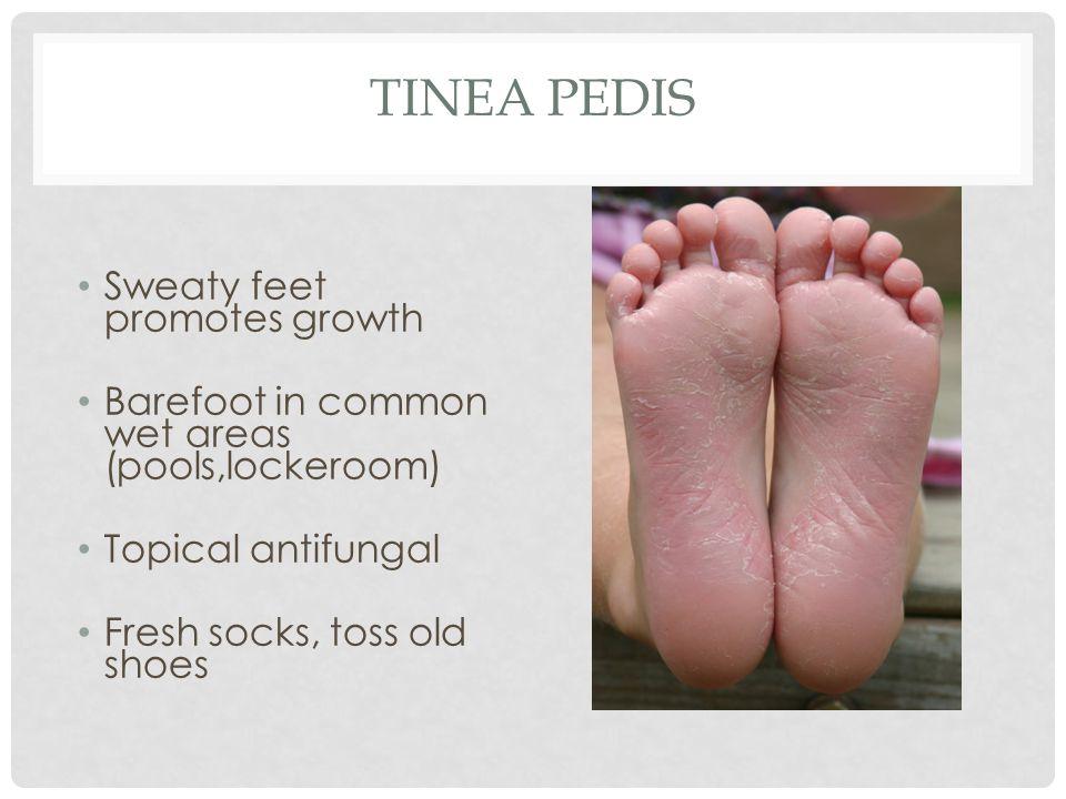 Tinea Pedis Sweaty feet promotes growth
