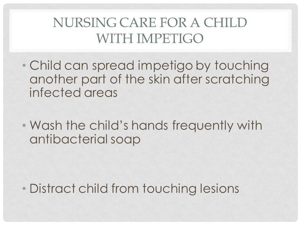 Nursing Care for a Child with Impetigo