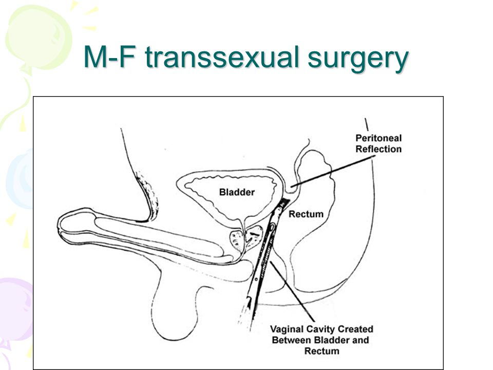 M-F transsexual surgery
