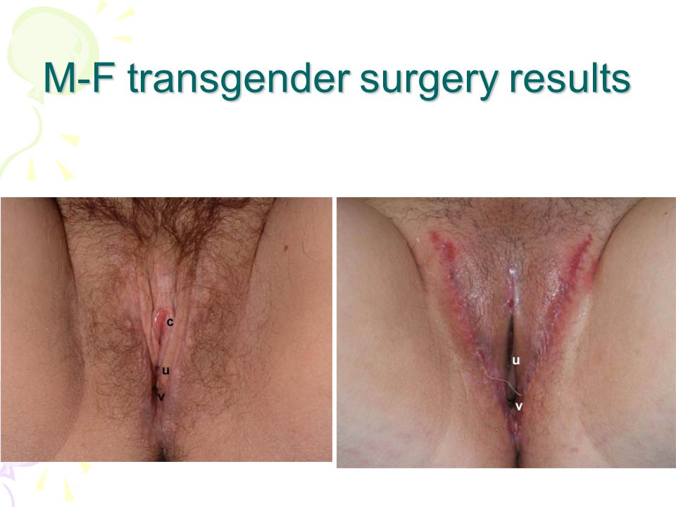 M-F transgender surgery results