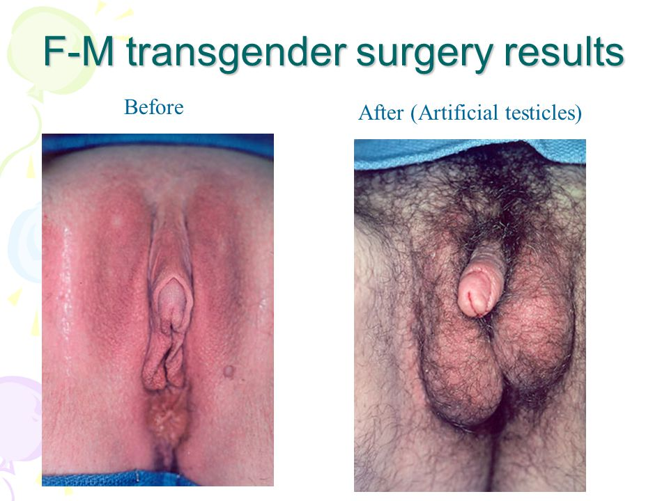 F-M transgender surgery results