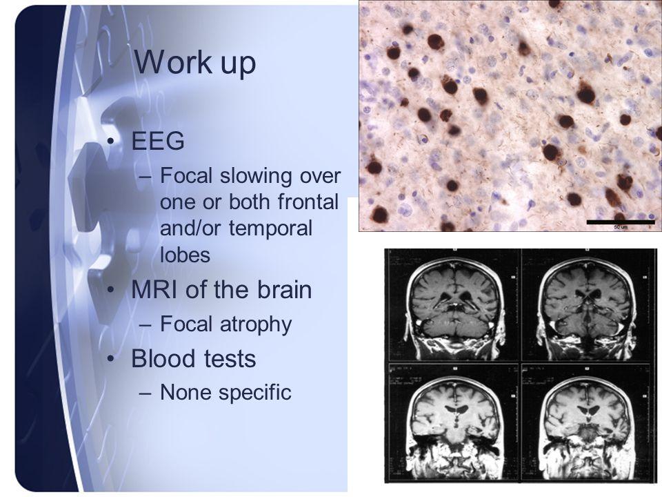 Work up EEG MRI of the brain Blood tests