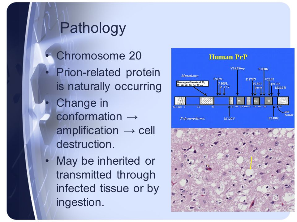 Pathology Chromosome 20 Prion-related protein is naturally occurring