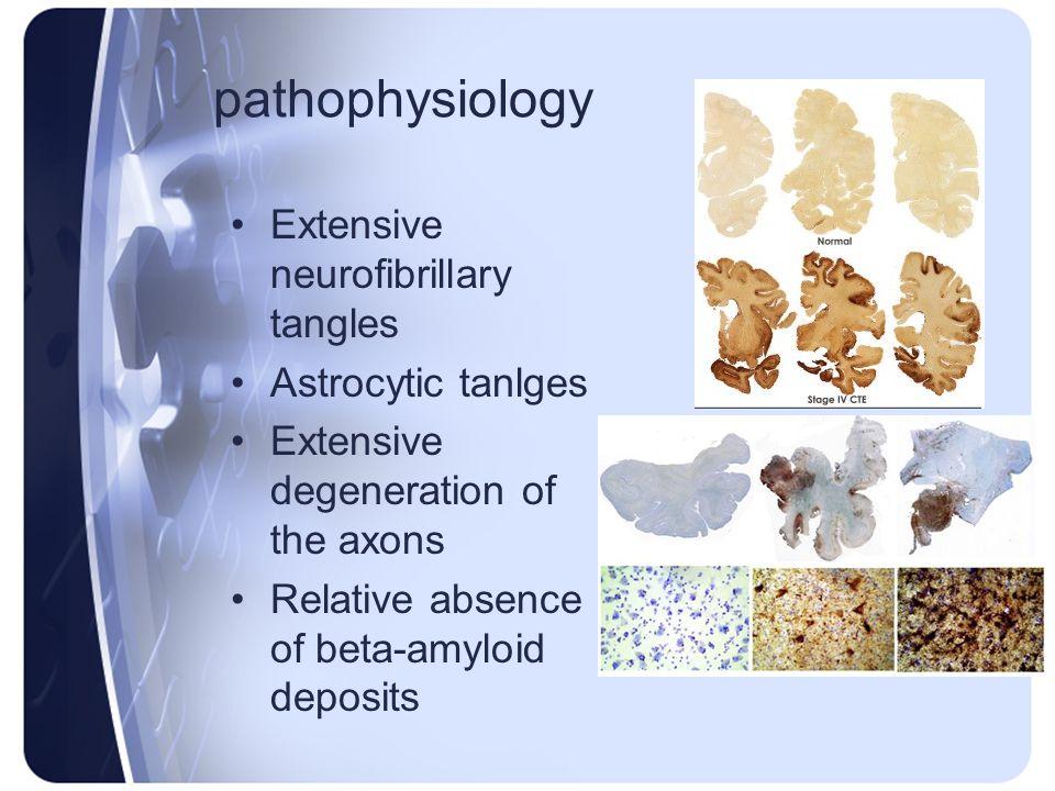 pathophysiology Extensive neurofibrillary tangles Astrocytic tanlges