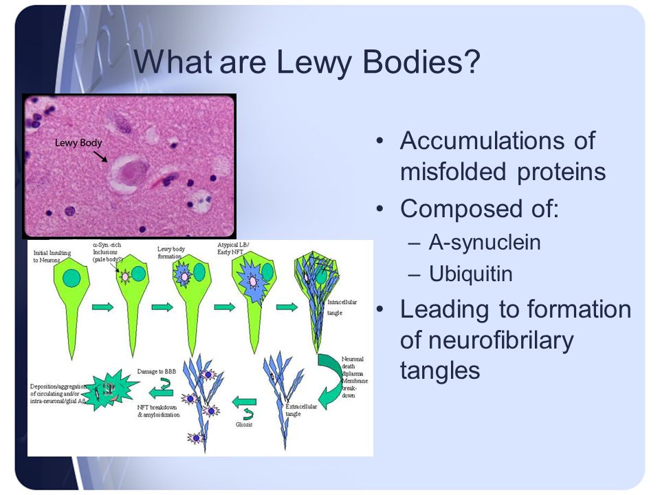 What are Lewy Bodies Accumulations of misfolded proteins Composed of: