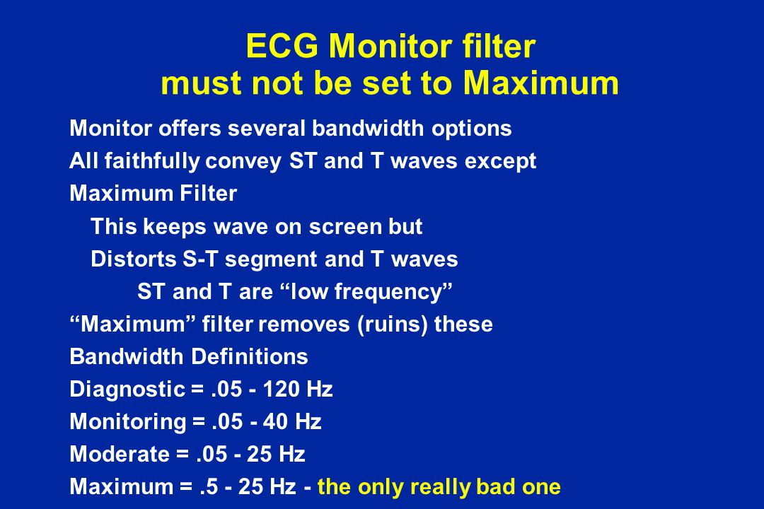 ECG Monitor filter must not be set to Maximum
