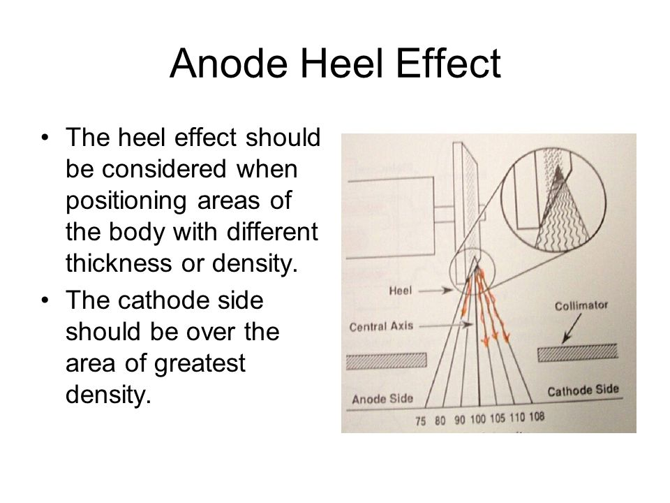 Anode Heel Effect The heel effect should be considered when positioning areas of the body with different thickness or density.
