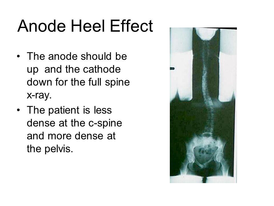 Anode Heel Effect The anode should be up and the cathode down for the full spine x-ray.