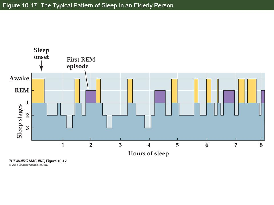Figure 10.17 The Typical Pattern of Sleep in an Elderly Person