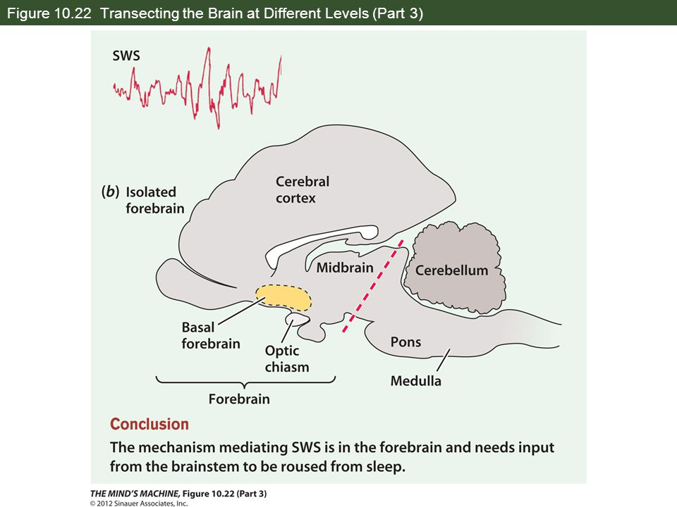 Figure 10.22 Transecting the Brain at Different Levels (Part 3)