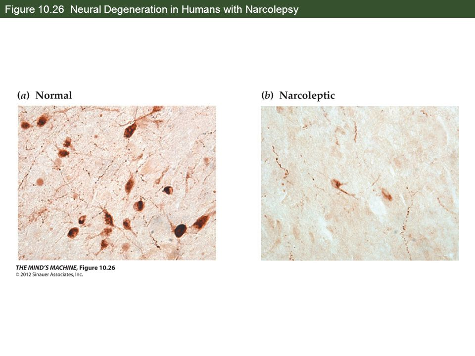 Figure 10.26 Neural Degeneration in Humans with Narcolepsy