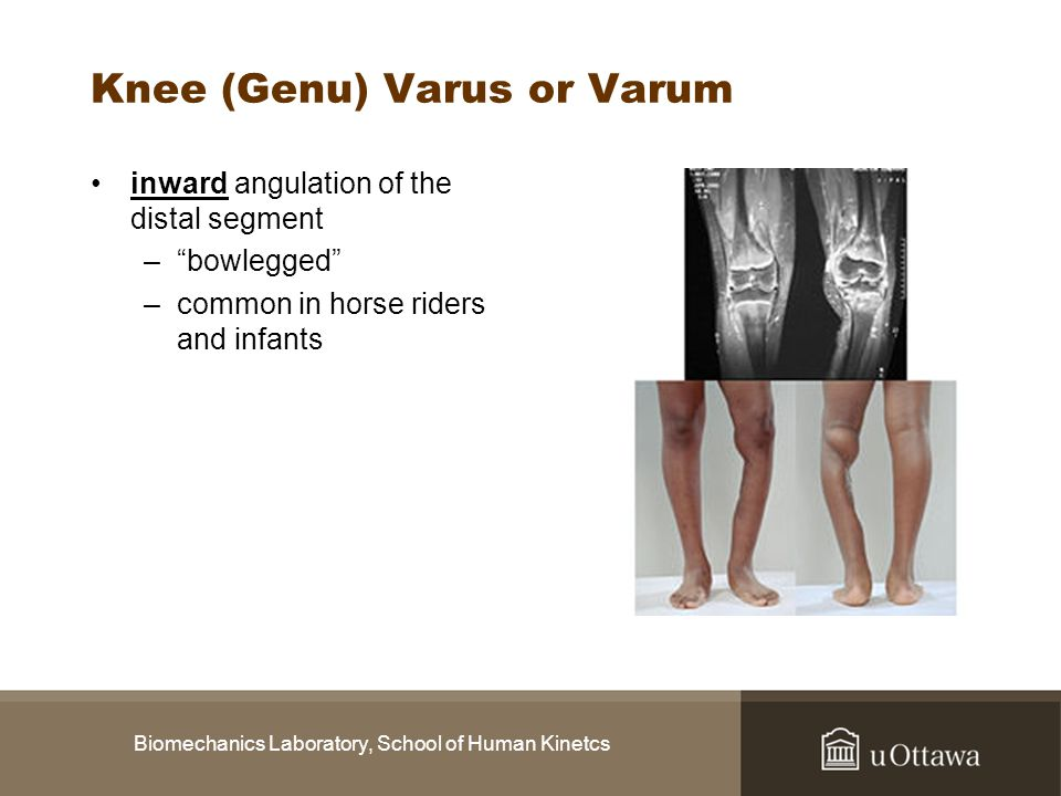 Knee (Genu) Varus or Varum