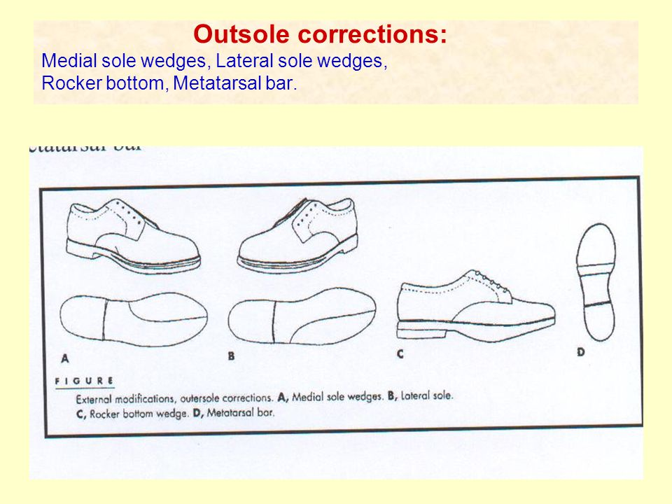 Outsole corrections: Medial sole wedges, Lateral sole wedges, Rocker bottom, Metatarsal bar.