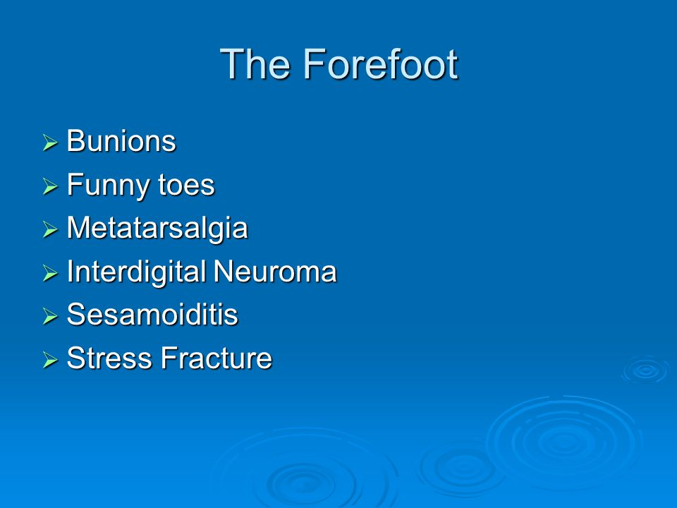 The Forefoot Bunions Funny toes Metatarsalgia Interdigital Neuroma