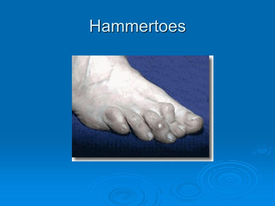 Hammertoes